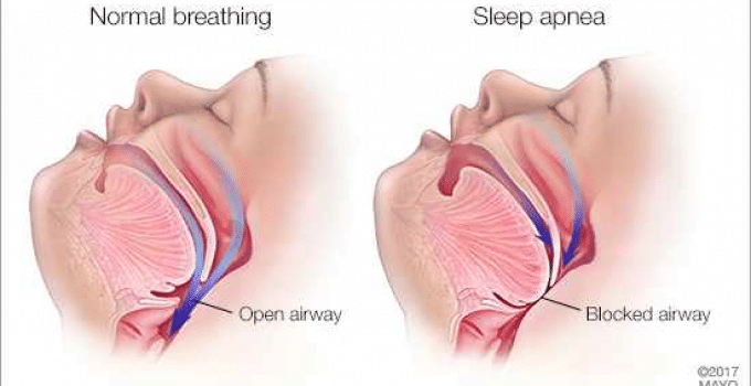 Sleep Apnea Treatment Lowers Healthcare Costs