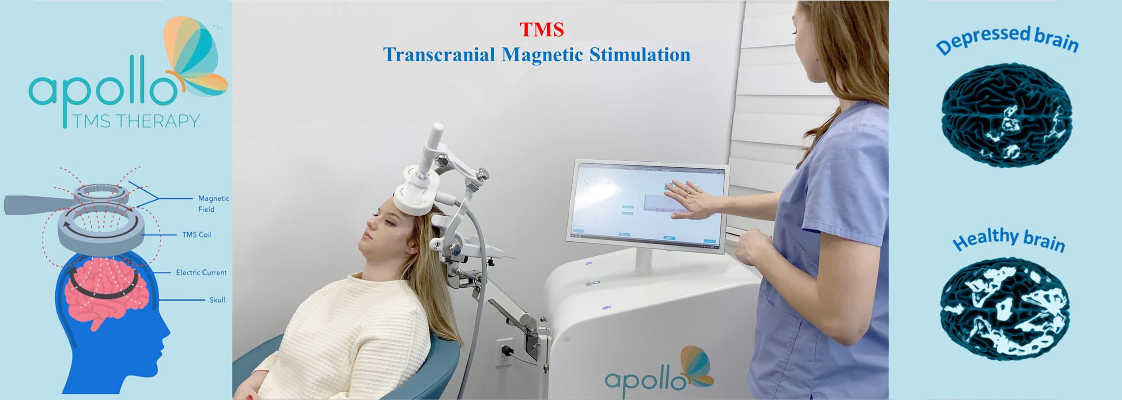 Apollo TMS Demo