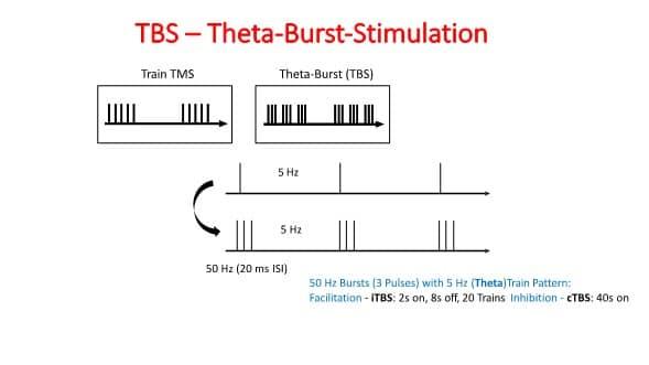 TMS Theta Burst Simulation